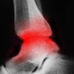 La viscosupplémentation dans l'arthrose de cheville