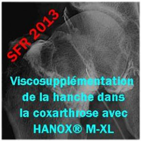 La viscosupplementation de la hanche n'est pas une alternative à la chirurgie dans la coxarthrose.