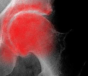 La viscosupplémentation dans l'arthrose de hanche ou coxarthrose