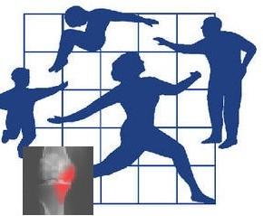 Viscosupplémentation dans l'arthrose: conditions pour une prise en charge