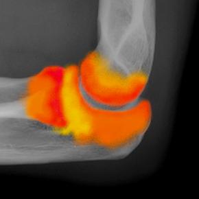 La viscosupplémentation dans l'arthrose du coude et le tennis elbow