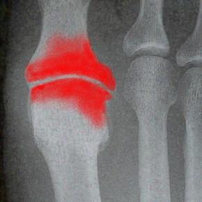 La viscosupplémentation dans l'arthrose métatarso-phalangienne  (MTP) du gros orteil (hallux).