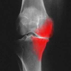 La viscosupplémentation dans l'arthrose du genou