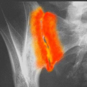 Viscosupplémentation par l'acide hyaluronique dans l'arthrose sacro-iliaque.