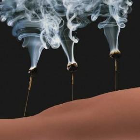La moxibustion dans le traitement de l'arthrose