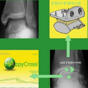 La viscosupplémentation à l'acide hyaluronique: ça marche aussi dans l'arthrose de cheville.