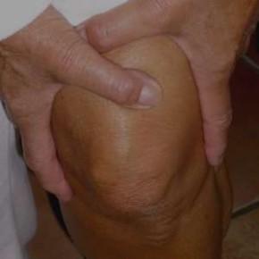J'ai mal au genou: est-ce une arthrose?