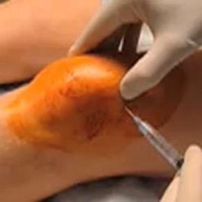 La prolothérapie dans le traitement de l'arthrose. 2-Etudes.