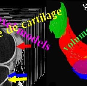 La viscosupplémentation à l'acide hyaluronique favorise l'augmentation de volume du cartilage après ostéotomie pour arthrose du genou.