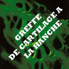 PREVENTION DE L'ARTHROSE. LA GREFFE DE CARTILAGE GAGNE DU TERRAIN : LA HANCHE EST ACCESSIBLE !