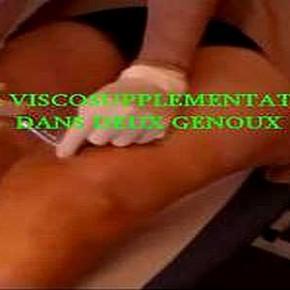 Acide hyaluronique et genou: viscosupplémentation dans l'arthrose: une vidéo